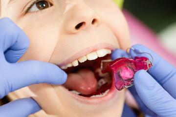 Ortodoncja dla noworodków