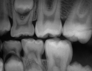 Dokumentacja fotograficzna w ortodoncji